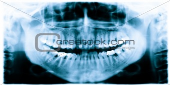 Teeth x-ray image