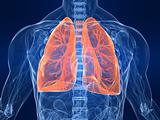 marked lung