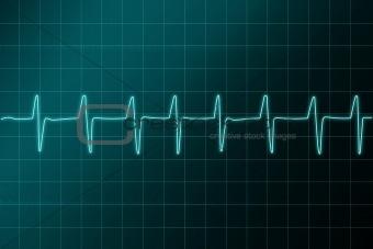 Cardiogram ritm