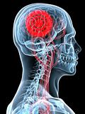 headache / migraene