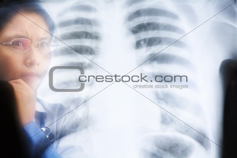 Asian female doctor busy working on x-ray result