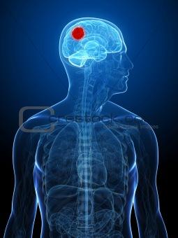 cerebral tumor