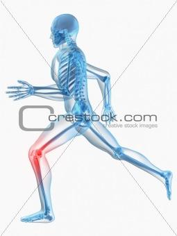 running man - painful hip
