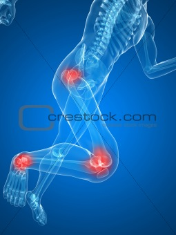 painful knee and hip