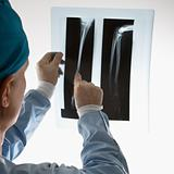 Doctor pointing at an x-ray.