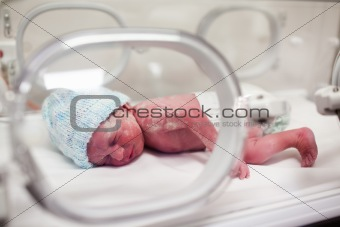Newborn baby covered in vertix in incubator