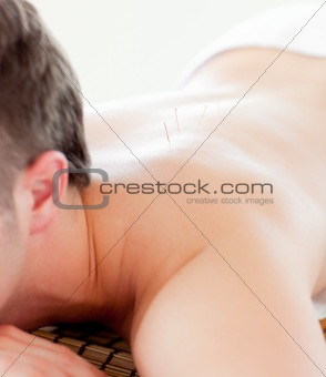 Close-up of a caucasian man receiving a acupuncture treatment