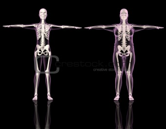 Medical female skeletons one slim and one overweight