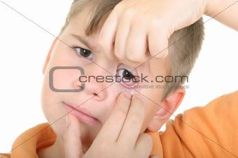 Boy shows an eye