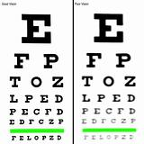 Eye Chart