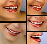 Smile collage