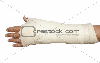 Broken arm in cast and bandage
