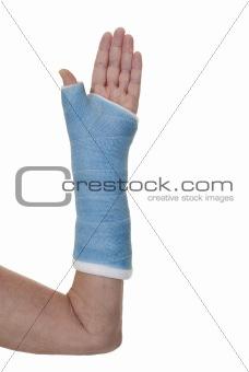 Broken arm in blue cast