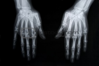 x-ray picture of human hands