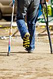 color crutch and broken leg in striped sock