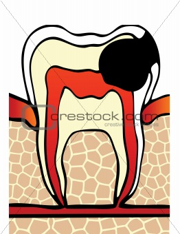 symptoms dental cavity vector illustration
