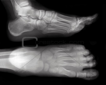 Foot-X-Ray