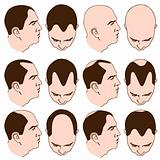 Receding Hairlines