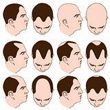 Receding Hairlines
