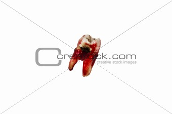 Decayed Molar