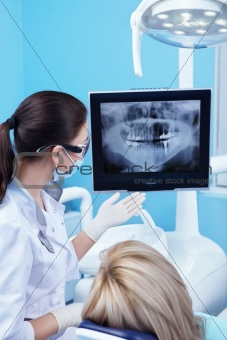 Dental X-ray of the patient