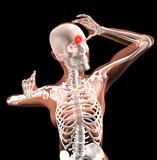 Female medical skeleton with migraine