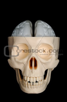 Skull with Exposed Brain