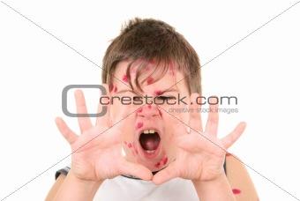 Little boy is ill with chicken pox