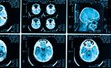 many type of brain scans with dark background