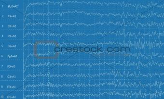 Brain wave electroencephalogramme (EEG)