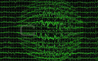 brain wave encephalogramme EEG isolated on black background