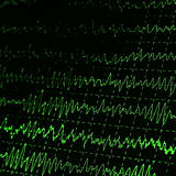 green graph brain wave EEG