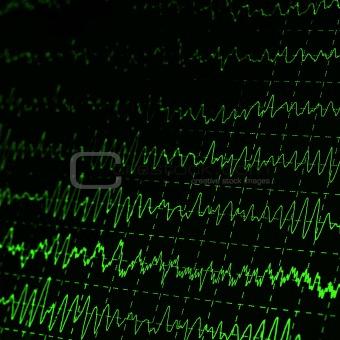 green graph brain wave EEG