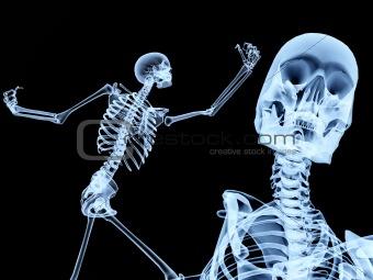 Two Xray Bones