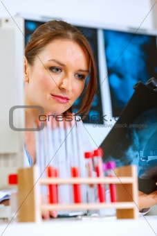 Thoughtful doctor woman sitting at office table and looking patients roentgen