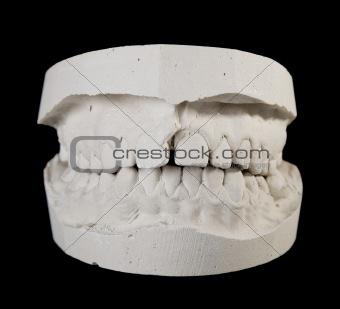 alabaster cast jaws man