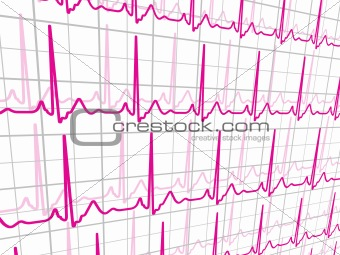 Heart beats cardiogram. EPS 8