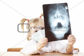 child playing with X-ray photograph