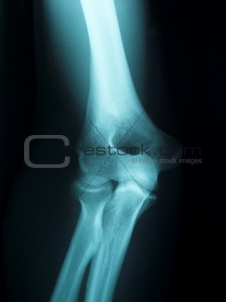 x-ray of a male arm
