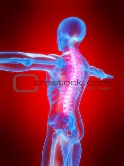 backache illustration