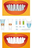 Bleaching of teeth