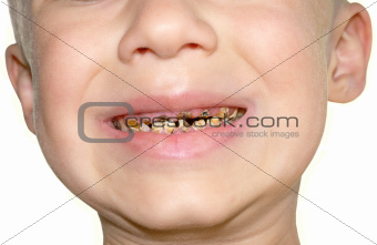 Teeth decay from sugar overload