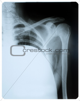 X-ray image of shoulder joint.