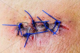 Closeup of a stitched wound