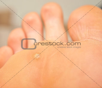 Callus and hyperkeratosis on foot, closeup