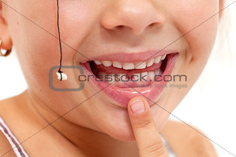 Child pointing to missing teeth - closeup on mouth