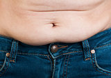 Woman pinching fat from her abdomen