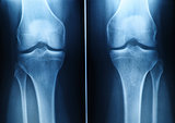 knee x-ray