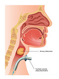 tracheotomy