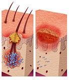 foliculitis pathogenic bacteria